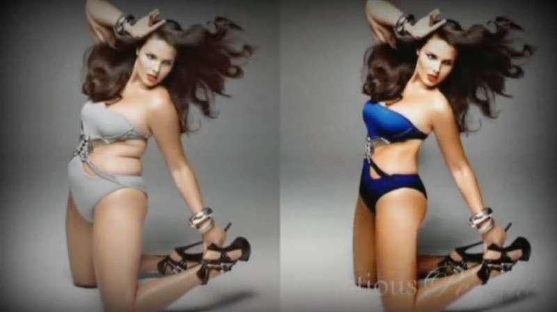 puzser-anorexia-modell-retus.jpg